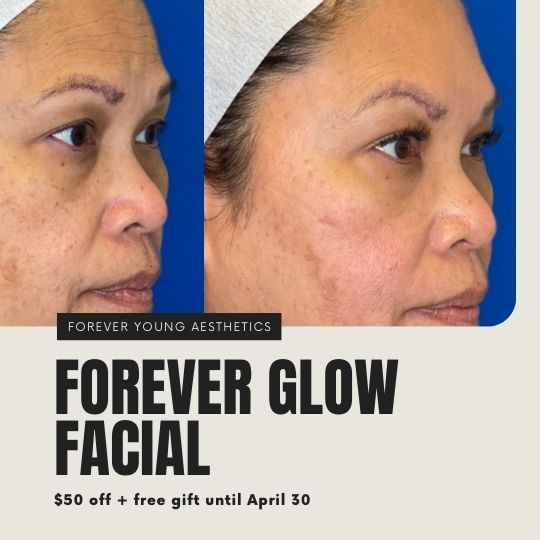 Medical Facial at Forever Young Aesthetics in Tampa FL