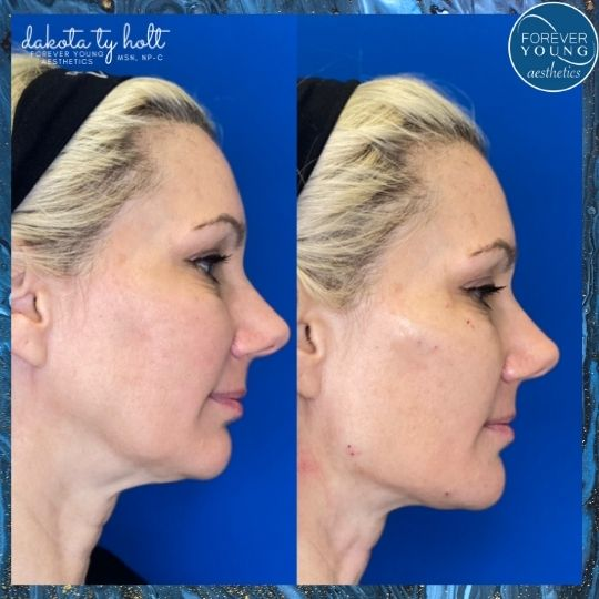 Mid Face Thread Lift by Forever Young Aesthetics in Tampa FL