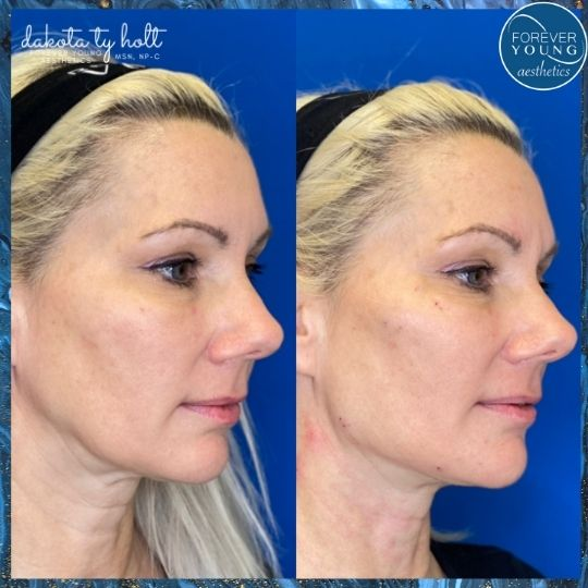 Neck Lift with Threads at Forever Young Aesthetics in Tampa FL