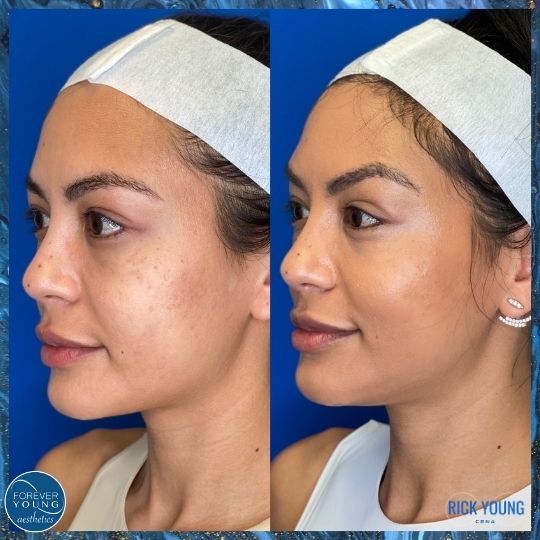 Nonsurgical Ponytail Thread Lift in Tampa FL