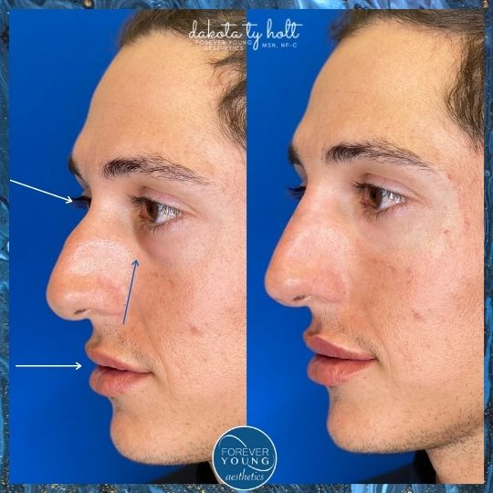 Nose Augmentation with filler by Forever Young Aesthetics in Tampa FL