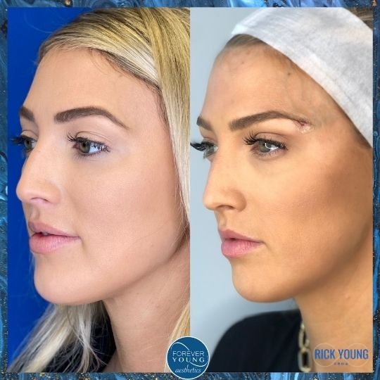 Ponytail Brow Lift by Forever Young Aesthetics in Tampa FL