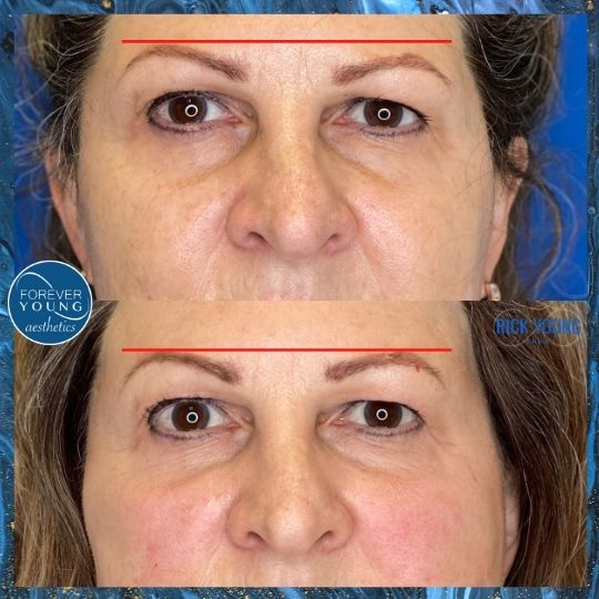 Threadlift for Eyebrows at Forever Young Aesthetics in Tampa FL