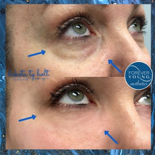 Under Eye Filler at Forever Young Aesthetics in South Tsmps FL