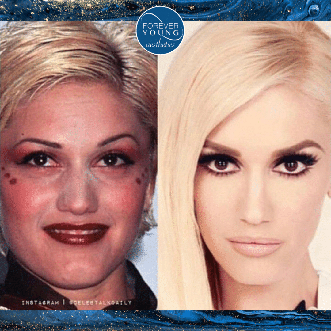 Celebrities with Botox at Forever Young Aesthetics in Tampa, FL