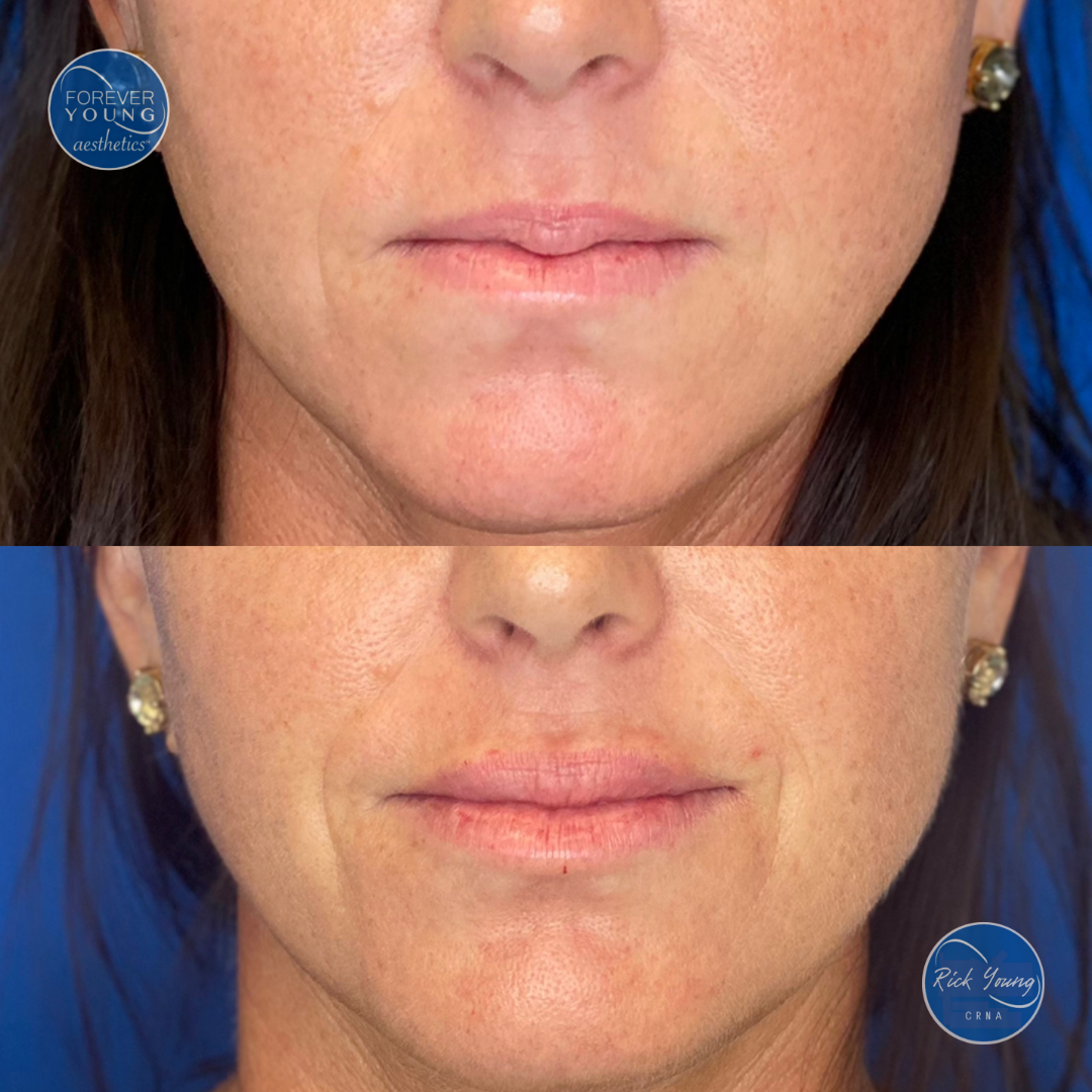 Filler for lip plump by Forever Young Aesthetics in Tampa, Florida.