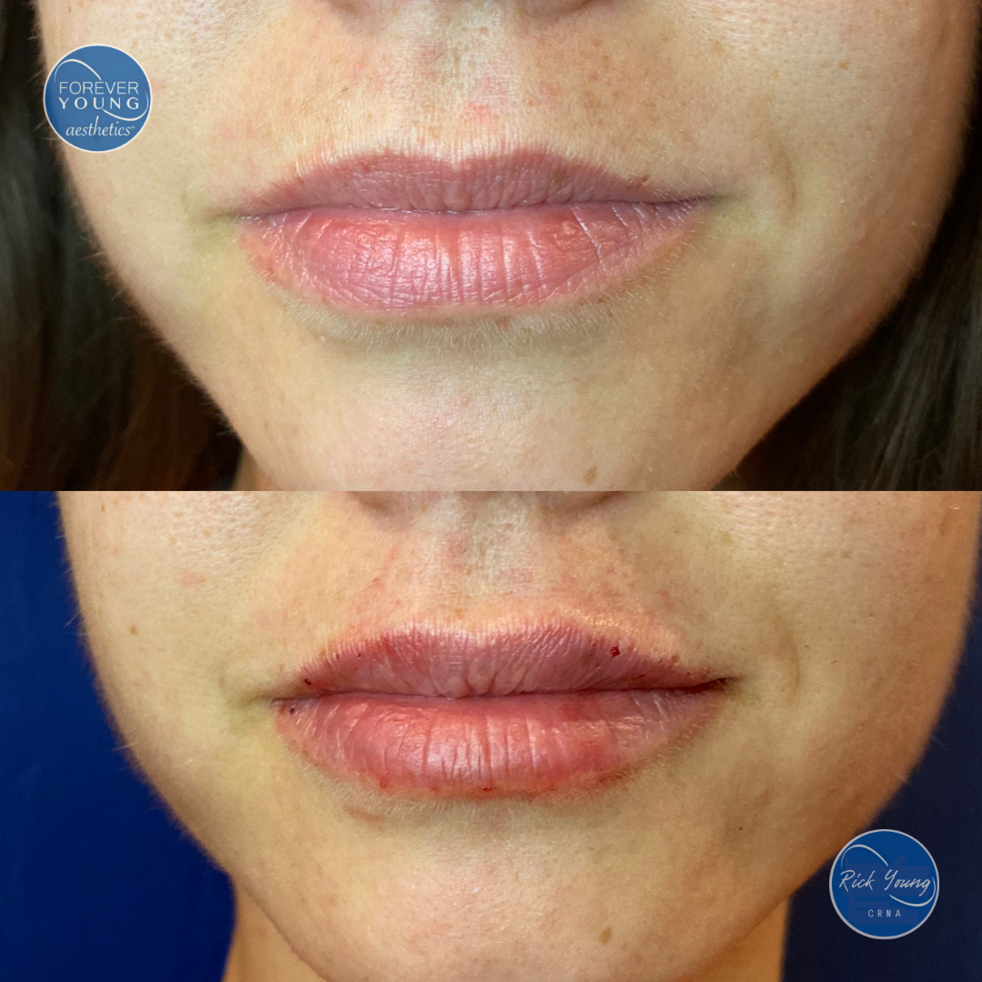 Filler for Lips by Forever Young Aesthetics in Tampa, Florida.