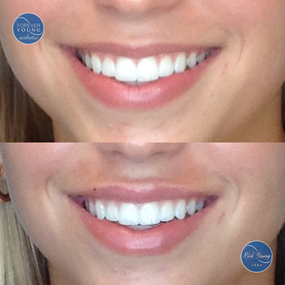 Gummy smile lip filler by Forever Young Aesthetics in Tampa, Florida.