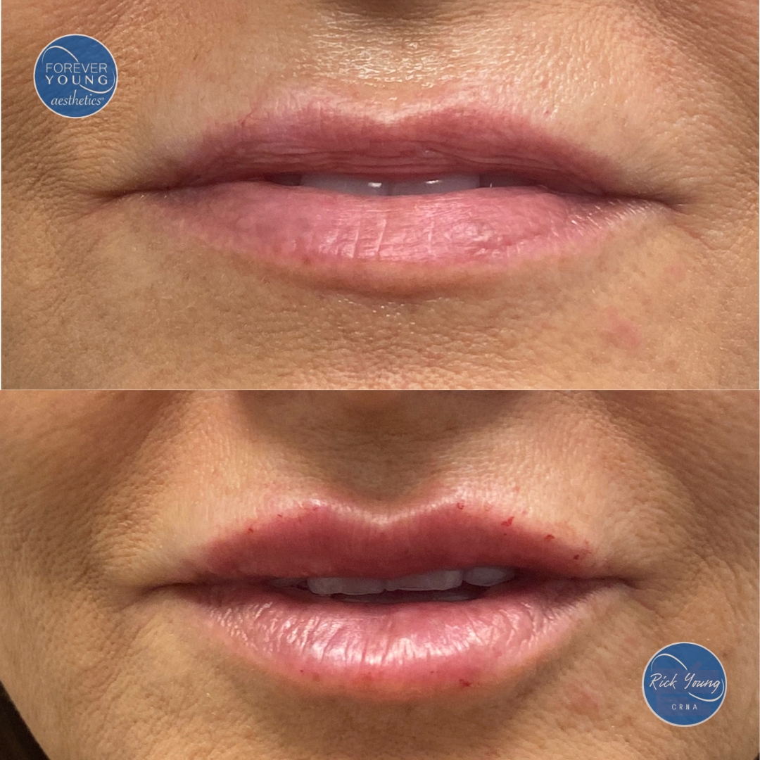 Juvederm Ultra before and after photo of lips in Tampa, FL.