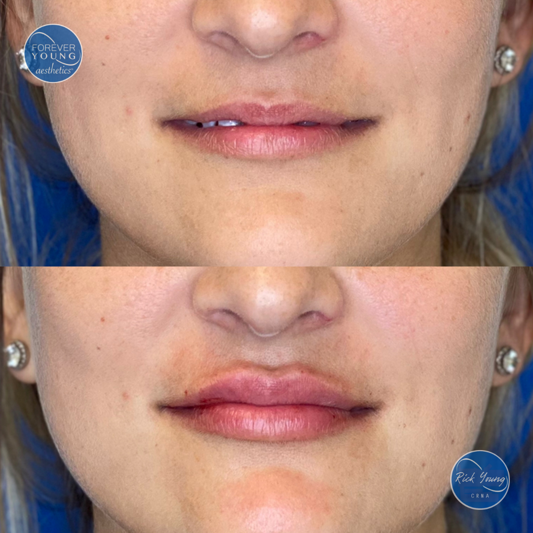 Juvederm Vollure filler at Forever Young Aesthetics in Tampa, Florida.