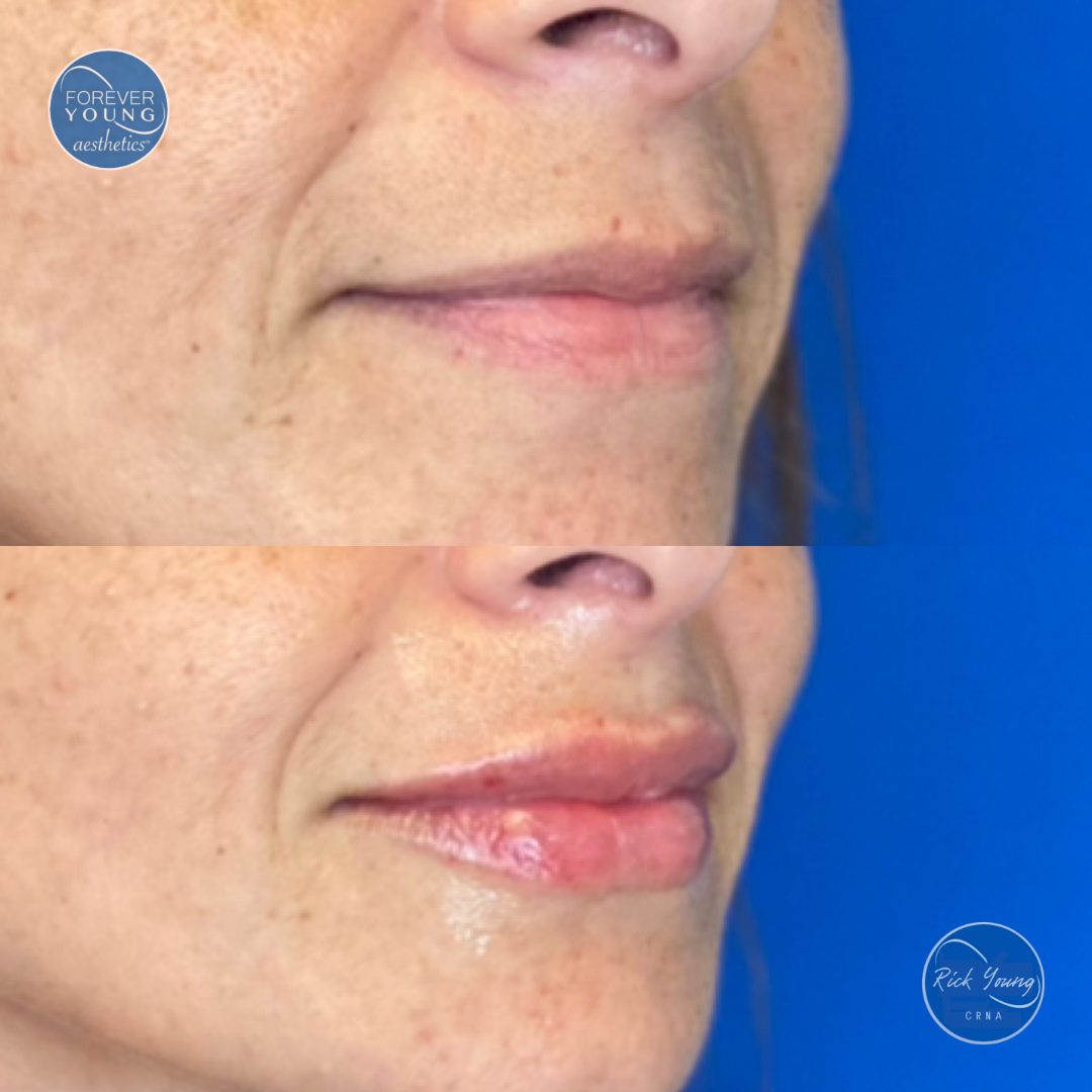 Lip augmentation with Restylane by Forever Young Aesthetics in Tampa, Florida.