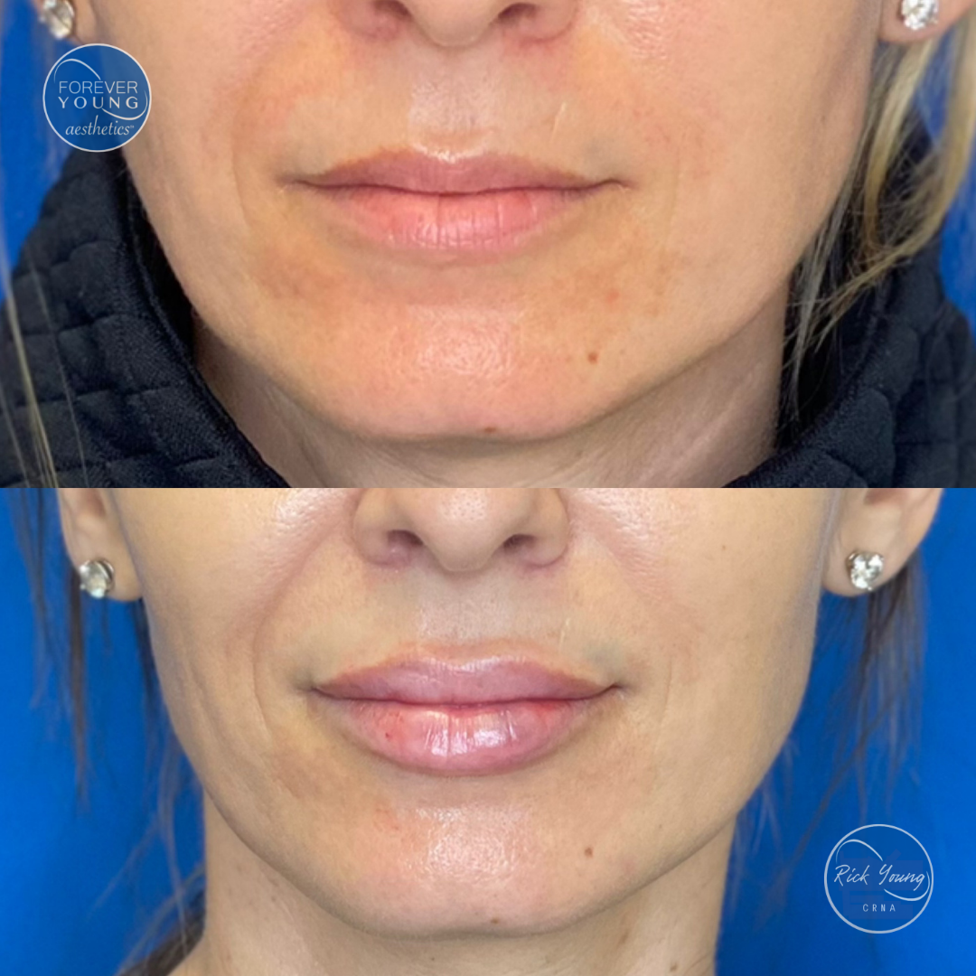 Lip enhancement by Medspa Forever Young Aesthetics in Tampa, Florida.
