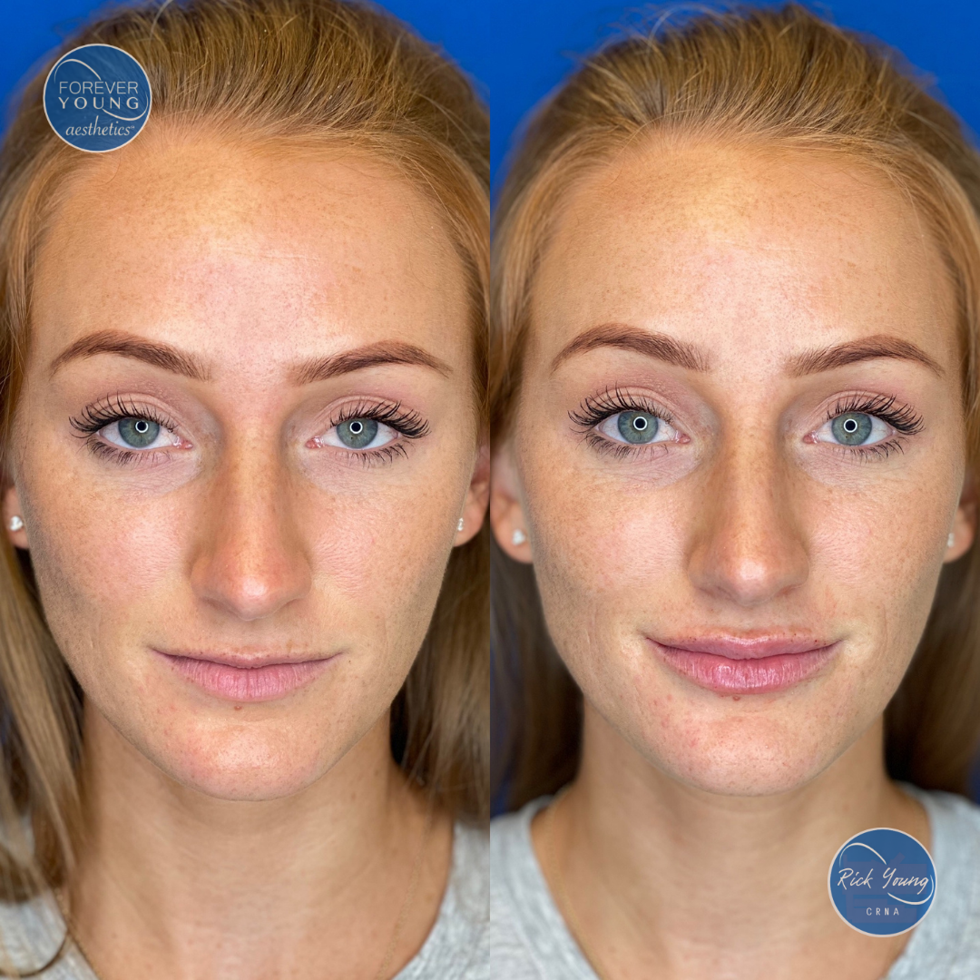 Lip Filler with Restylane Kysse in Tampa, Florida.