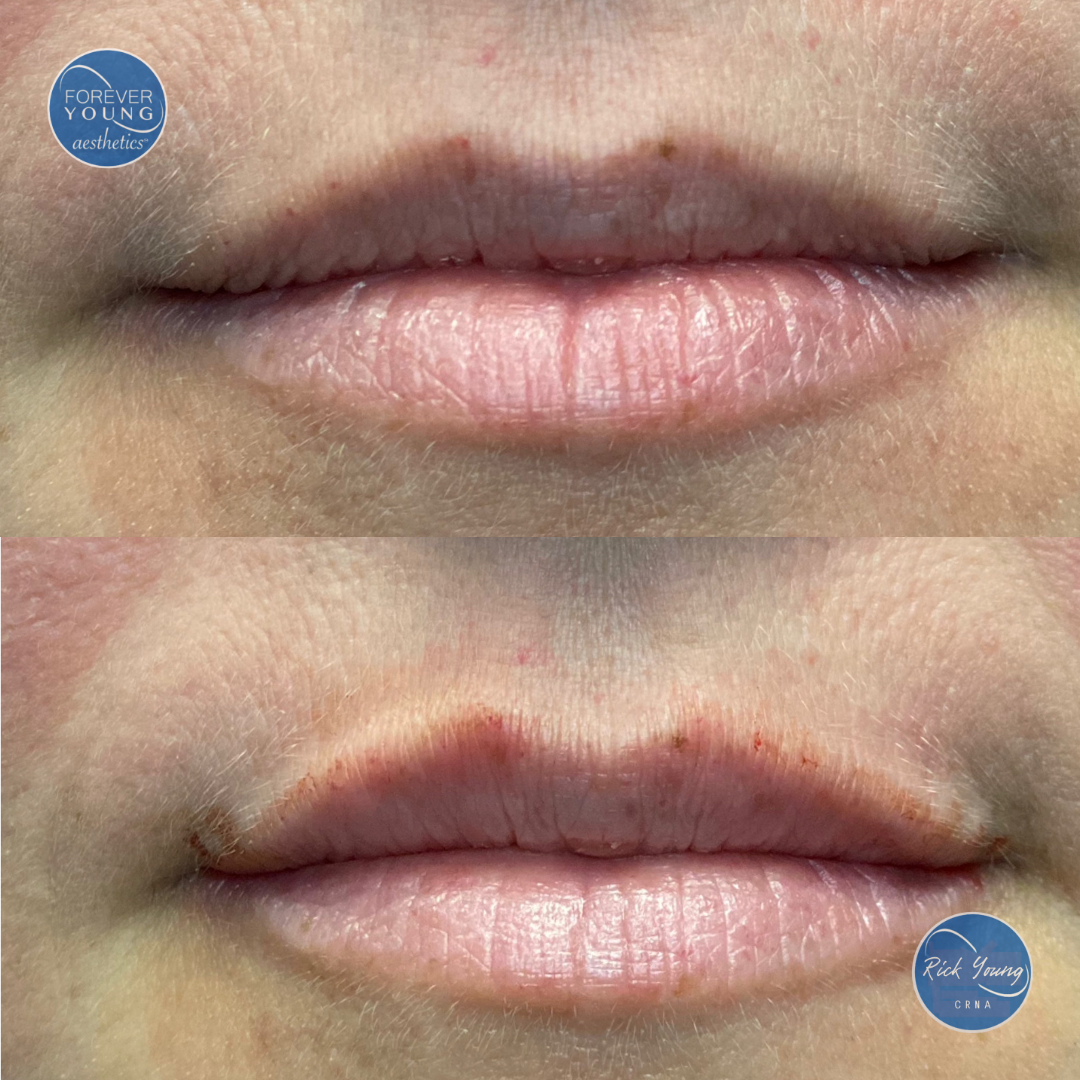 Lip filler volume at Forever Young Aesthetics in Tampa, FL.
