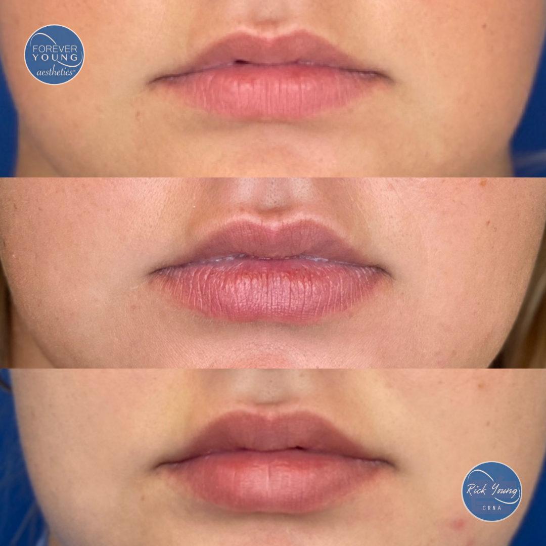 Lip flip at Medspa Forever Young Aesthetics in Tampa, Florida.