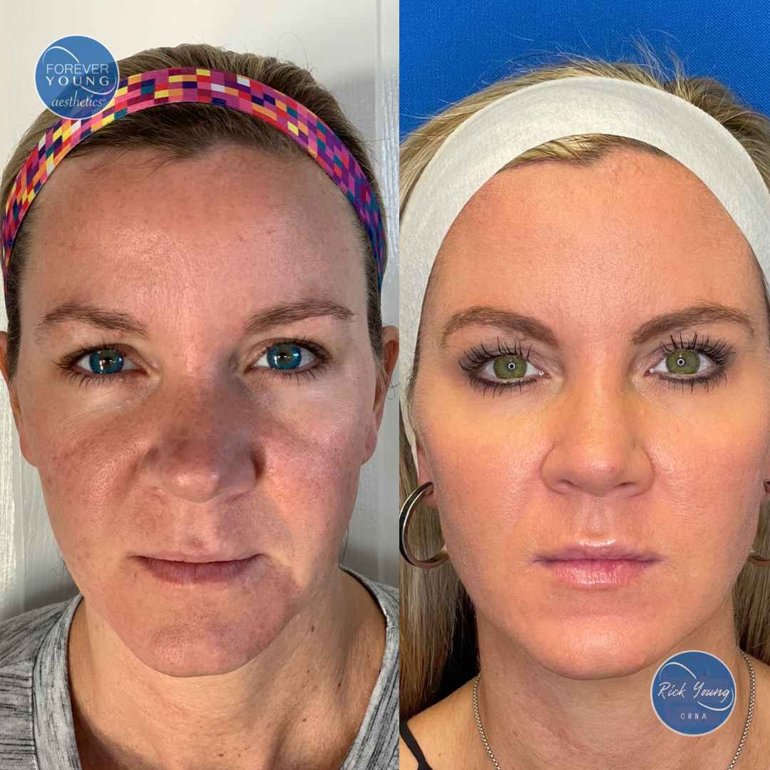 Lip injection with filler Restylane at Forever Young Aesthetics in Tampa, Florida.