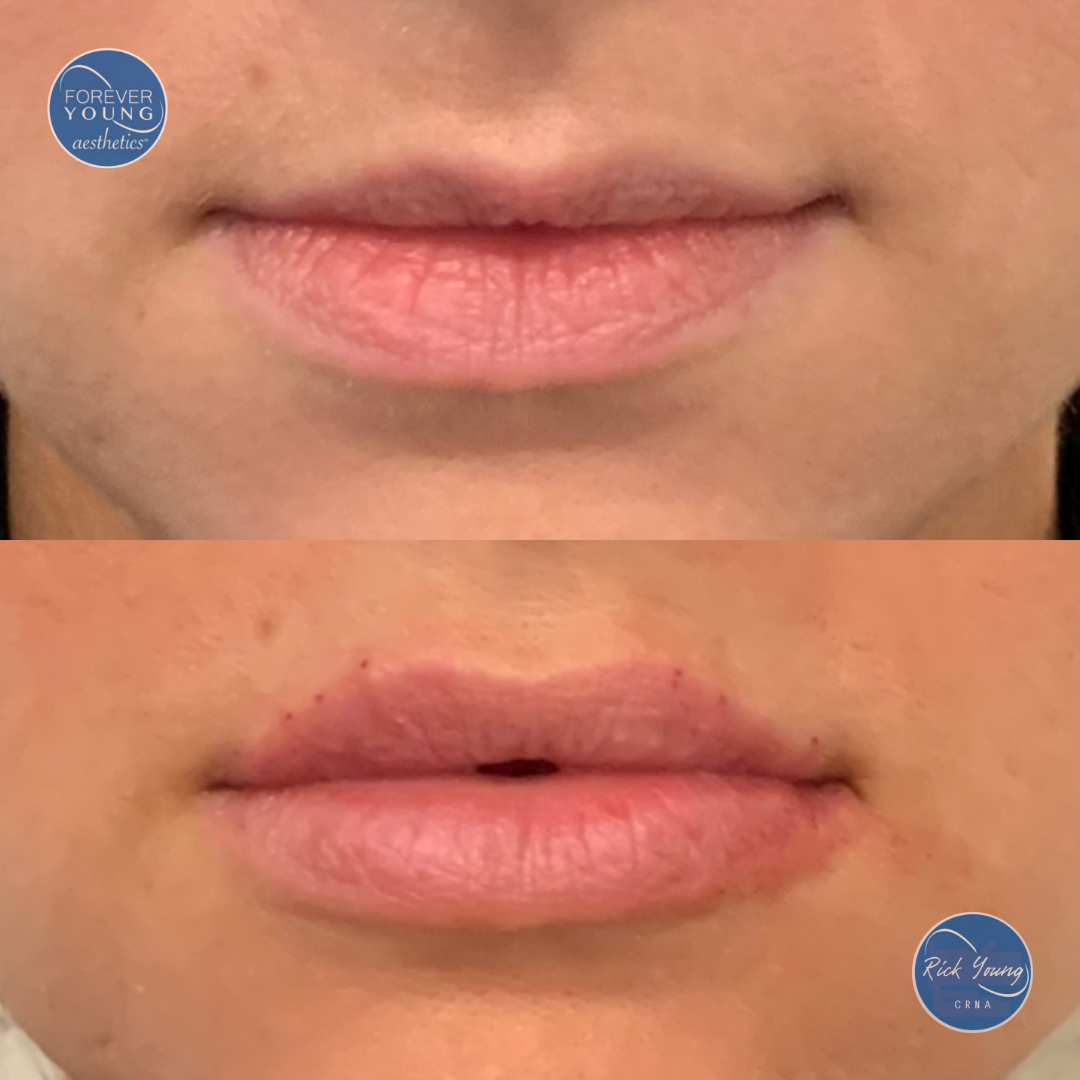Lip injections by Forever Young Aesthetics in Tampa, Florida.