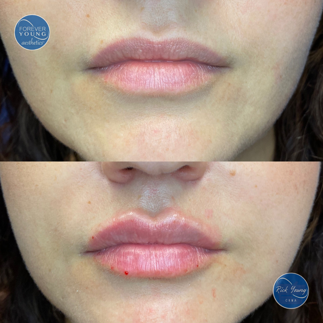 Lips with Restylane before and after photo in Tampa, FL.