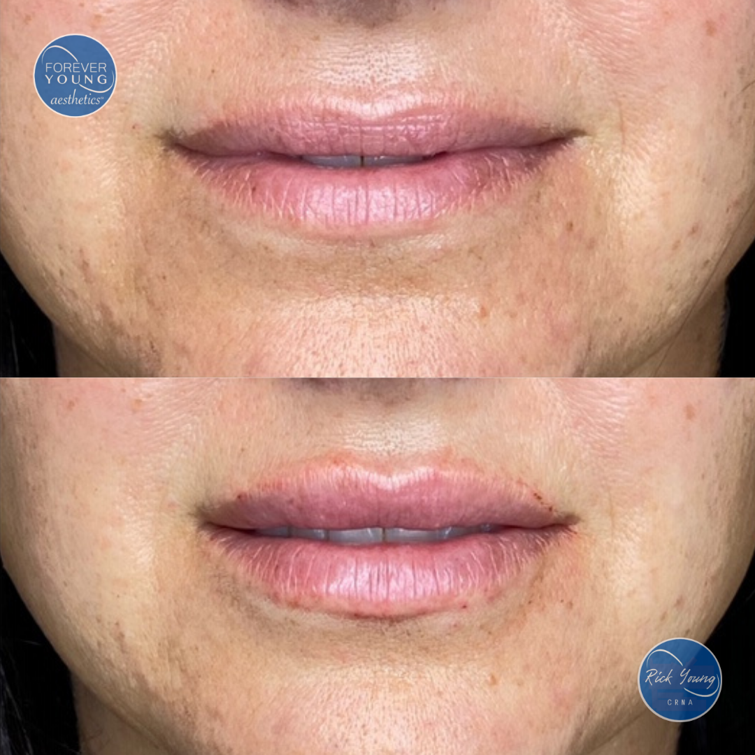 Uneven lips with filler by Forever Young Aesthetics in Tampa, Florida.